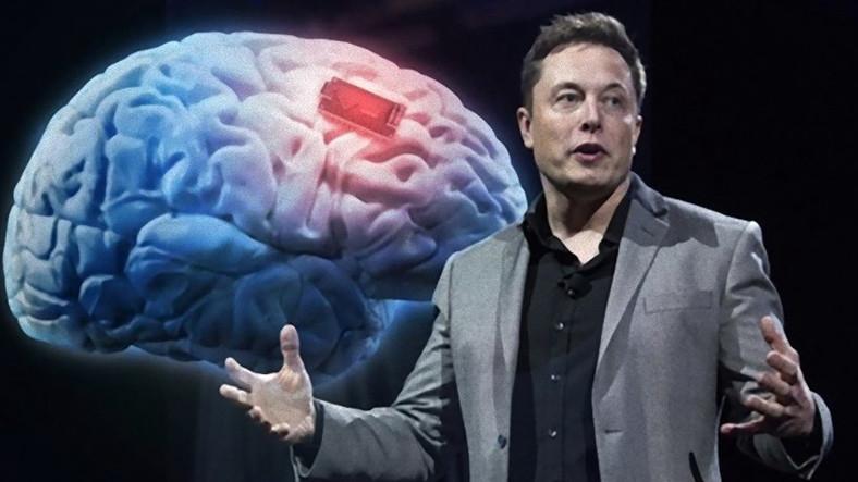 Elon Musk Otizmi Tedavi Edecek